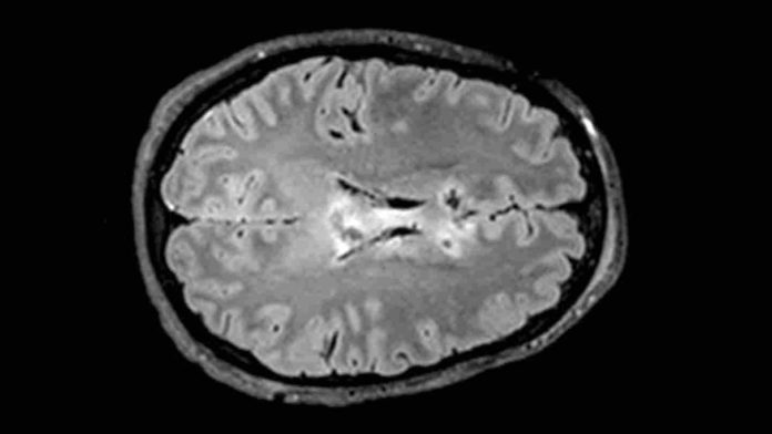 A blood test can help predict recovery from traumatic brain injury